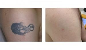 tattoo-removal-before-after