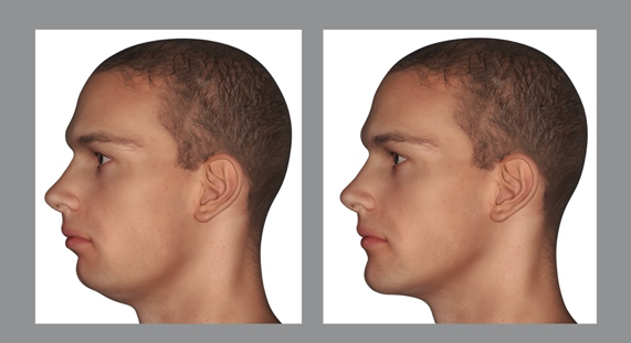 A permanent chin implant