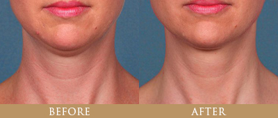 Kybella Treatment Before and After - Patient 1
