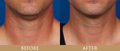 Kybella Treatment Before and After - Patient 4