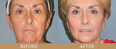 Facelift and Neck Lift Surgery